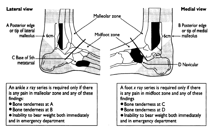 Figuur 1. STIELL I., WELLS G., LAUPACIS A., ROBERT B., VERBEEK R., VANDEMHEEN K., NAYLOR D. Multicentre trial to introduce the Ottawa ankle rules for use of radiography in acute ankle injuries.
