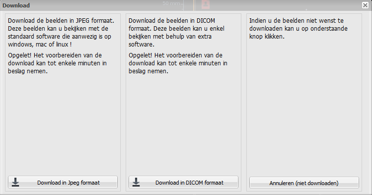 De beelden worden gedownload in de standaar download map van de browser