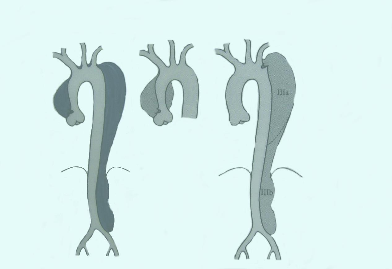 Aorta dissectie 2/3 1/3 Incidence : 2 to 4 per