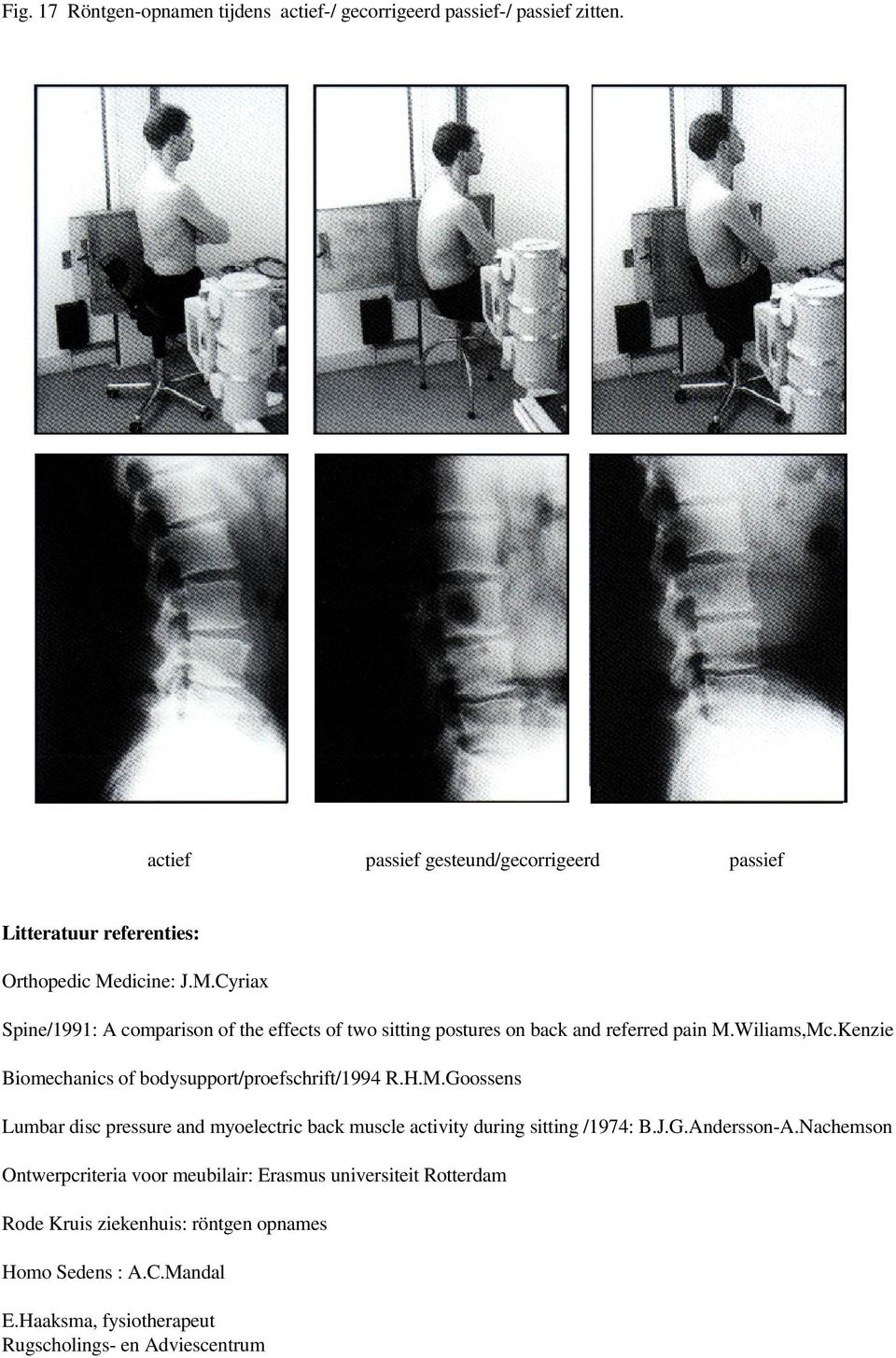 dicine: J.M.Cyriax Spine/1991: A comparison of the effects of two sitting postures on back and referred pain M.Wiliams,Mc.