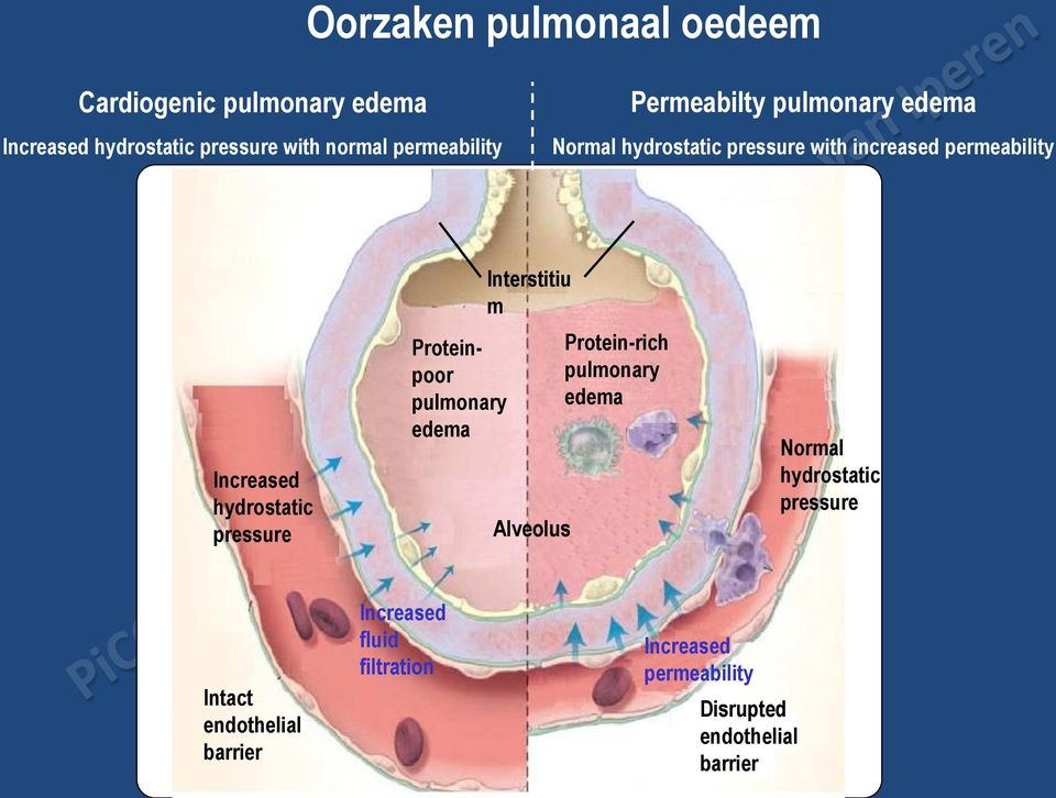 pressure Proteinpoor pulmonary edema Interstitiu m Alveolus Protein-rich pulmonary edema Normal hydrostatic