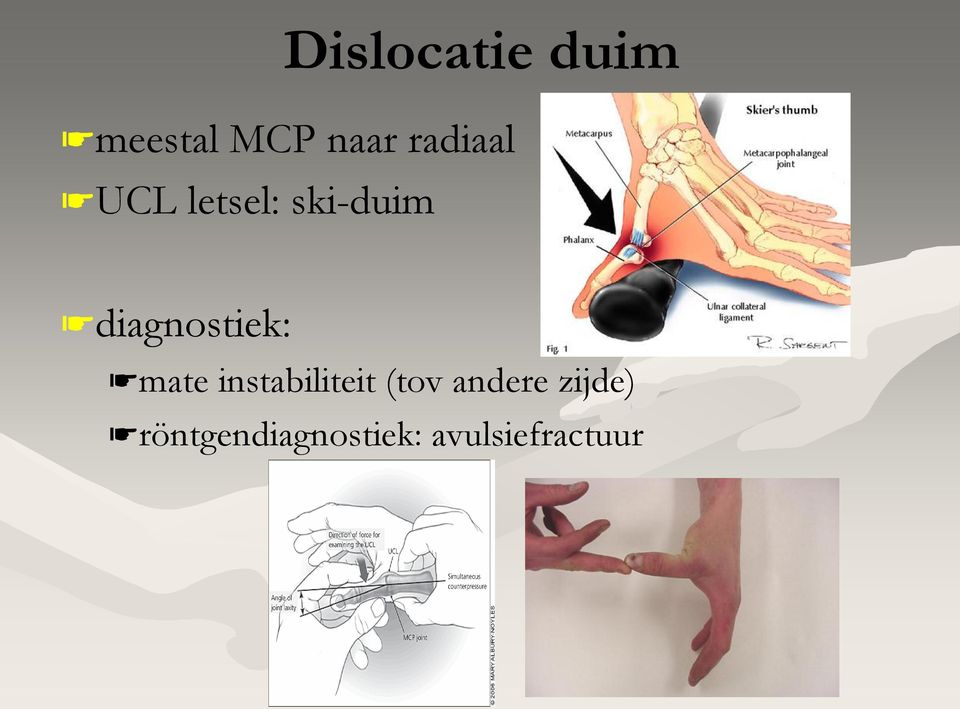 diagnostiek: mate instabiliteit (tov