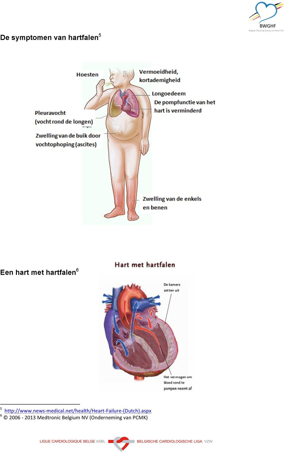 net/health/heart- Failure- (Dutch).