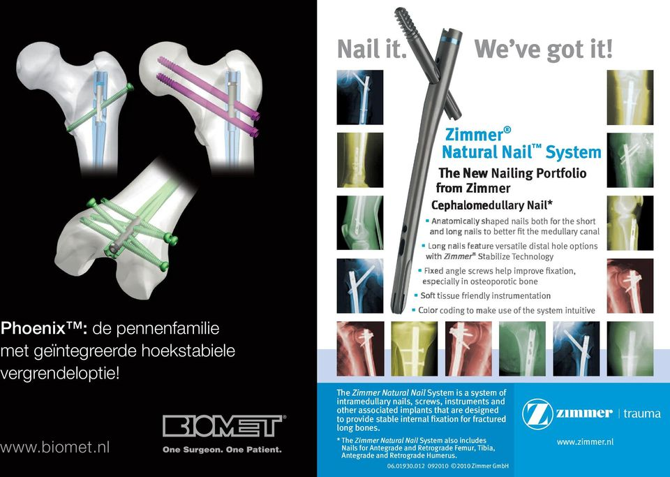 nl T T The Zimmer Natural al Nail System is system intramedullary nails, screws, instruments a of and other associated implants that are designed to provide stable internal fixation for fractured