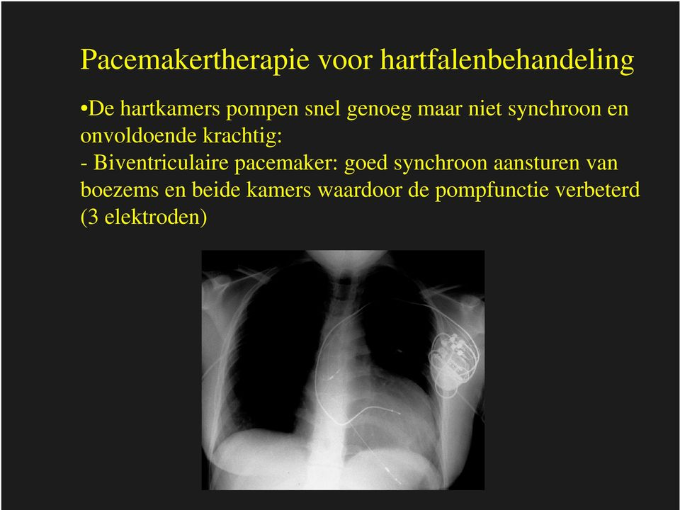 krachtig: - Biventriculaire pacemaker: goed synchroon