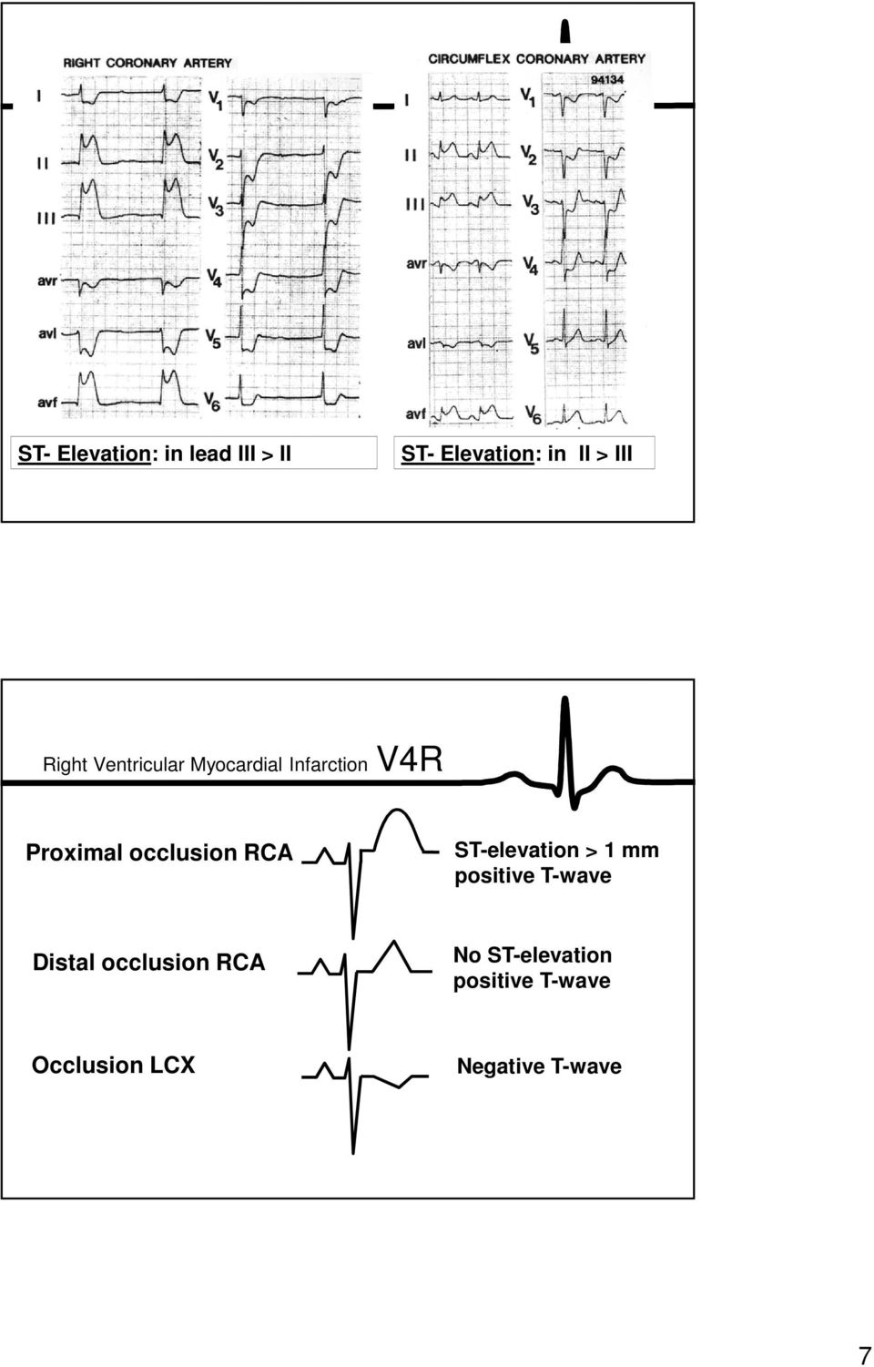 occlusion RCA ST-elevation > 1 mm positive T-wave Distal