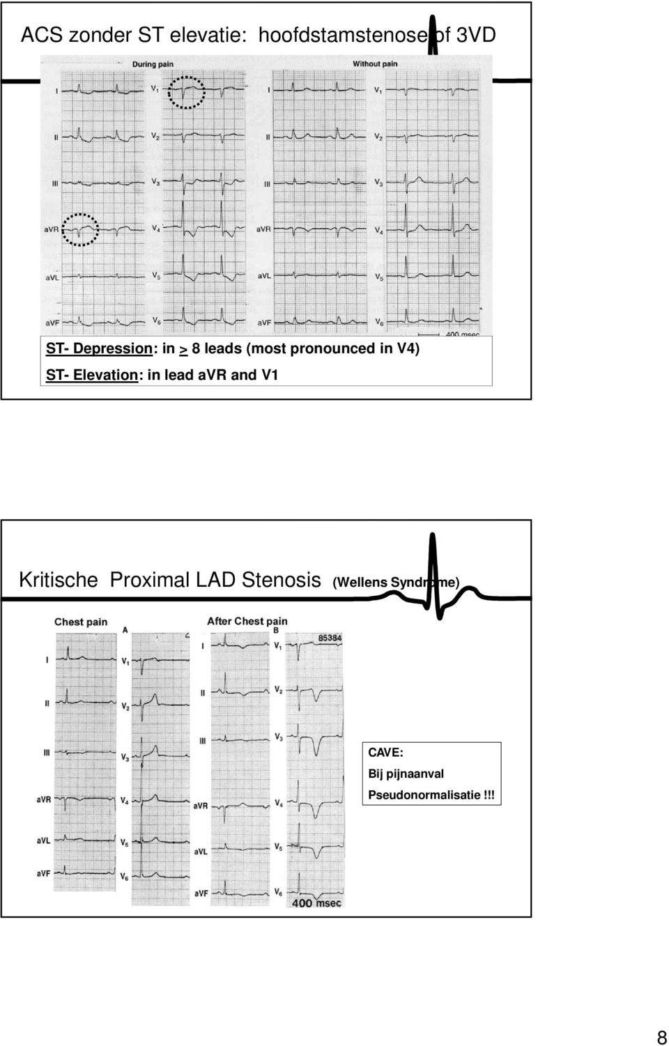 Elevation: in lead avr and V1 Kritische Proximal LAD