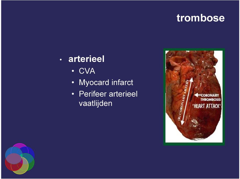 Myocard infarct