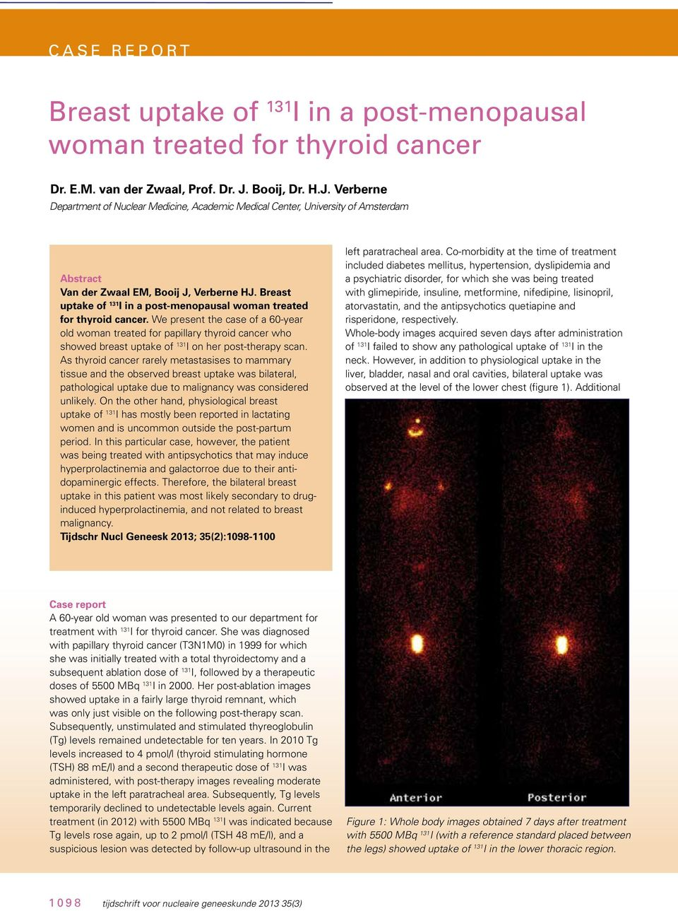 Breast uptake of 131 I in a post-menopausal woman treated for thyroid cancer.