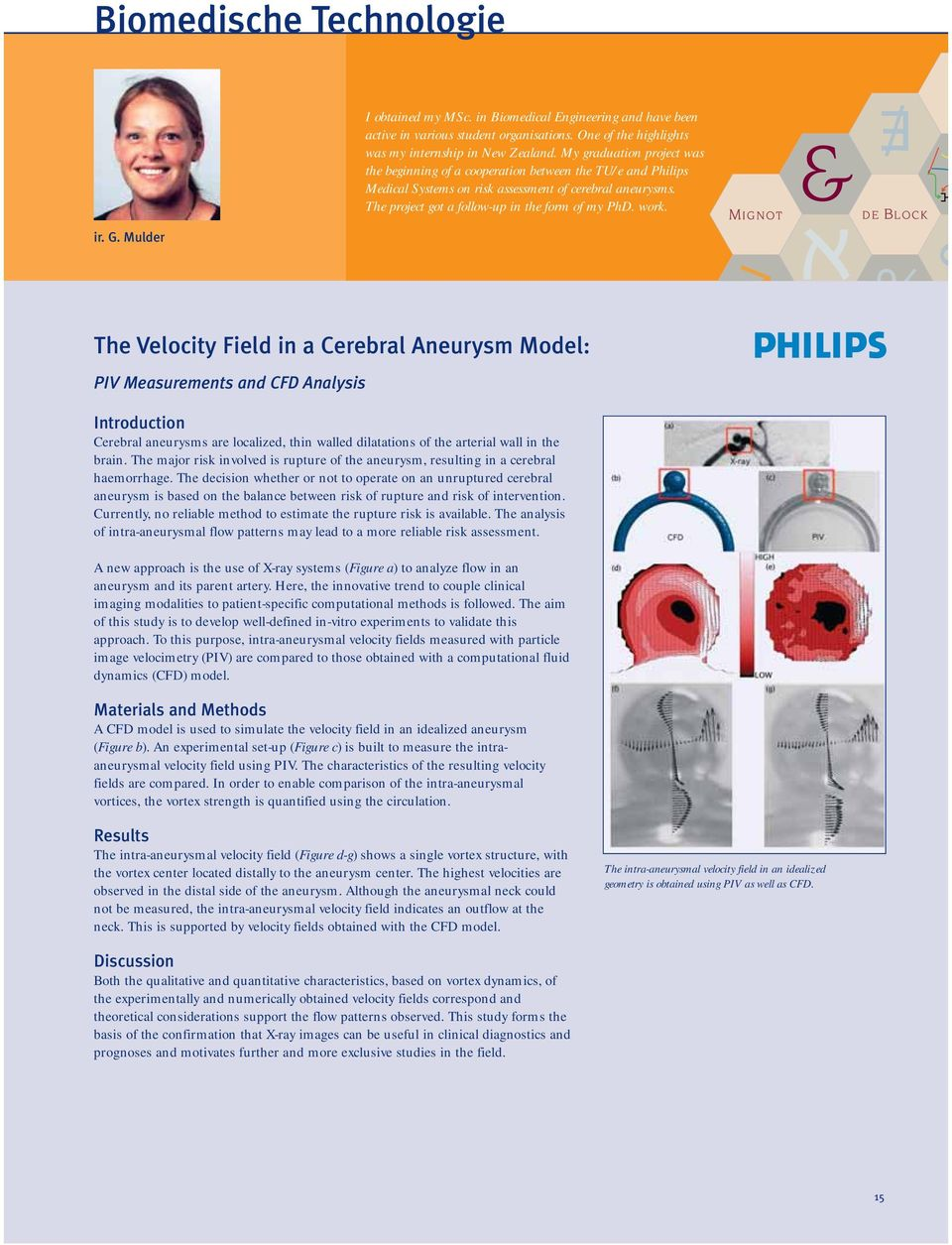 The Velocity Field in a Cerebral Aneurysm Model: PIV Measurements and CFD Analysis Introduction Cerebral aneurysms are localized, thin walled dilatations of the arterial wall in the brain.