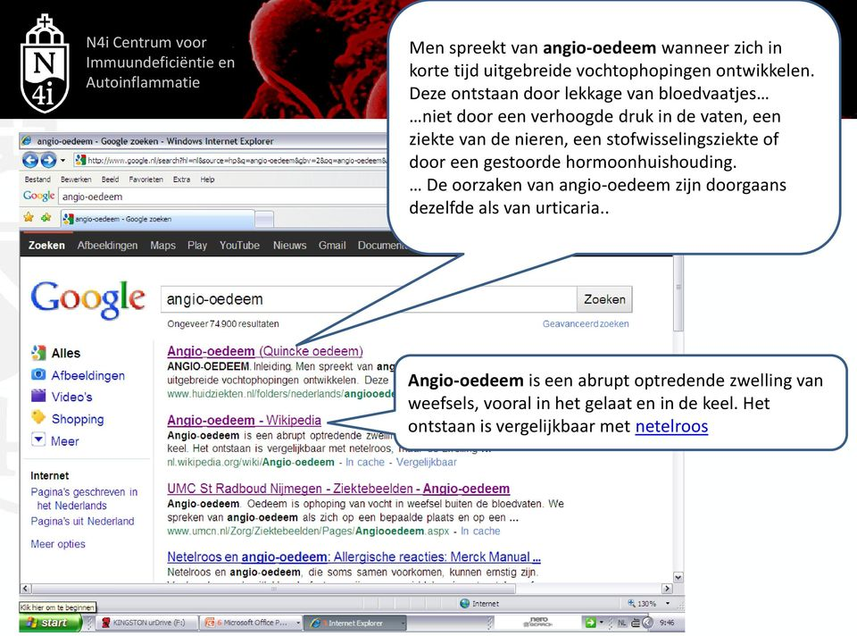 melkersson rosenthal syndrome wikipedia