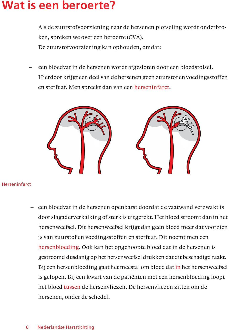 Men spreekt dan van een herseninfarct. Herseninfarct een bloedvat in de hersenen openbarst doordat de vaatwand verzwakt is door slagaderverkalking of sterk is uitgerekt.