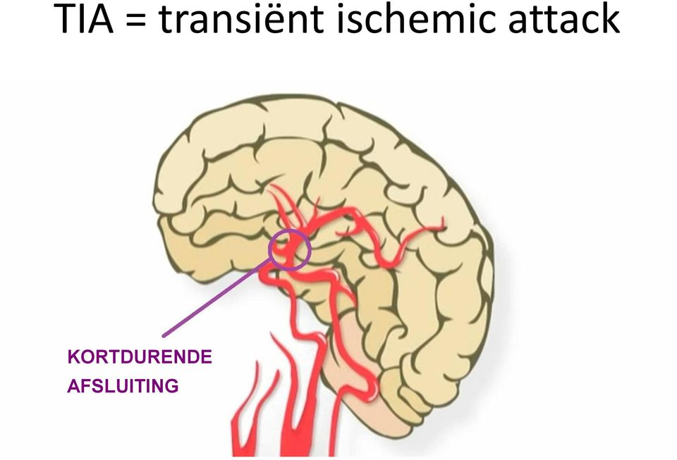 ischemic