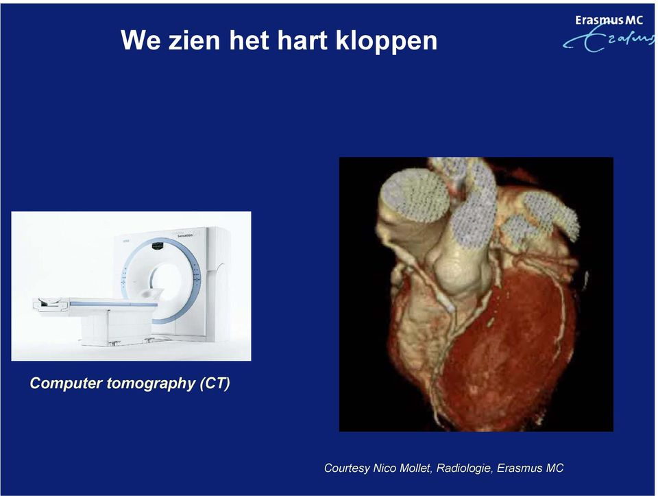 tomography (CT)
